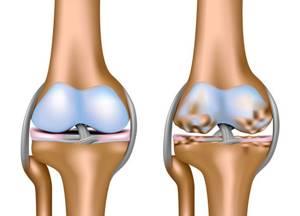 Массаж коленного сустава при артрозе: видео, фото, как делать