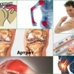 Инфекционный - септический артрит суставов: признаки и лечение