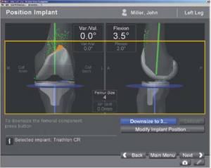 Видео презентация: эндопротезирование коленного сустава с использованием лазерной навигации