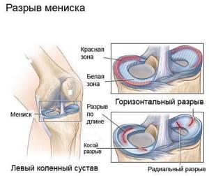 Разрыв заднего рога медиального мениска коленного сустава: лечение, симптомы, повреждение мениска