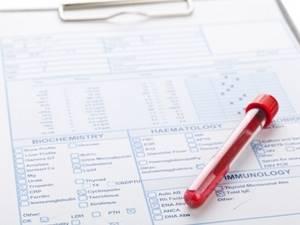 Ревматоидный фактор: показатели и расшифровка результата