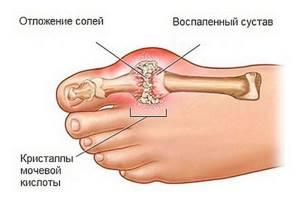 Болит косточка на ноге около большого пальца: лечение, причины