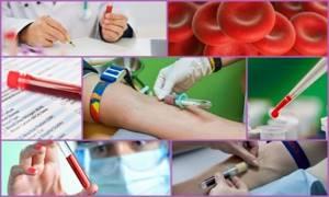 Анализы при артрите: виды, особенности проведения и диагностики