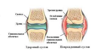 Почему хрустят кости: перечень причин и способов лечения