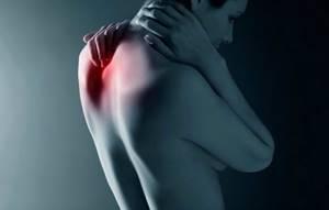 Остеохондроз шейного отдела 3 степени: причины, способы лечения