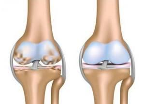 Гирудотерапия при подагре: особенности лечения суставов пиявками