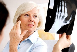 Ревматоидный полиартрит: симптомы и лечение, причины болезни, диагностика