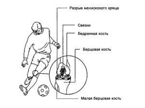 Менисцит коленного сустава: диагностика и лечение симптомов