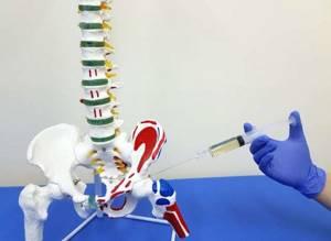 Медикаментозная блокада тазобедренного сустава: показания, принцип действия, выбор лекарств, проведение