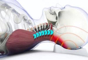 Мази, кремы, гели и бальзамы для лечения боли в шее. Список названий