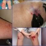 Пиявки при артрозе коленного сустава: польза и вред