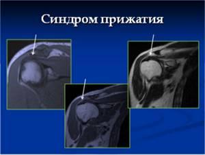 МРТ плечевого сустава: как делают, что показывает, расшифровка