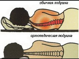 Как правильно спать при шейном остеохондрозе: на какой подушке, в какой позе
