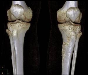 Домашнее лечение боли в колене при сгибании и разгибании