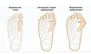 Бурсит стопы: симптомы и лечение. Медикаменты и физиотерапия