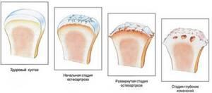 Деформирующий остеоартроз коленного сустава, лечение