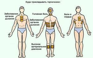 Горчичники при остеохондрозе шейного отдела: как поставить правильно