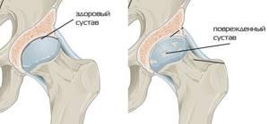 Коксартроз тазобедренного сустава 2 степени, как лечить, инвалидность