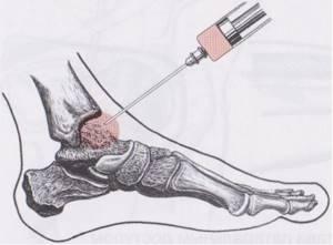 Посттравматический артроз голеностопного сустава: лечение
