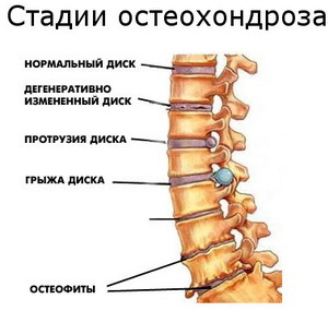 Шейный остеохондроз 1 степени: симптомы, диагностика и лечение