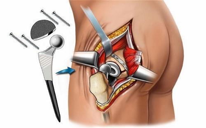Асептический некроз головки тазобедренного сустава: лечение, последствия