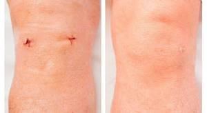 Артроскопия коленного сустава: что это такое, техника операции, отзывы