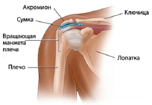 Субакромиальный бурсит плечевого сустава: симптомы и лечение