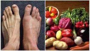 Что делать если болит голеностопный сустав при ходьбе и не только
