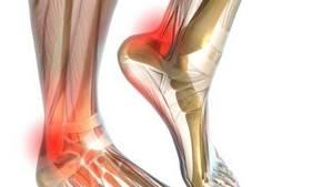 Хруст в голеностопном суставе: причины, способы лечения у взрослых и детей