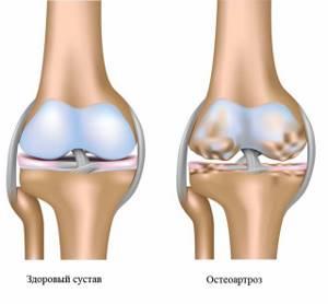 Лечение остеоартроза коленного сустава народной медициной