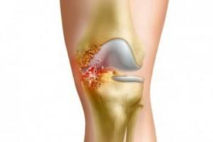 Гнойный артрит коленного и голеностопного суставов: симптомы и лечение