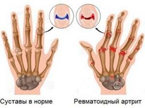 Почему болят суставы рук и ног: что делать, причины боли, как и чем лечить