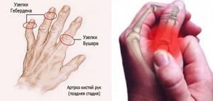 Деформирующий артроз кистей рук: симптомы и лечение