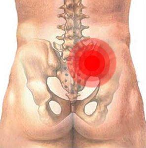 Сакроилеит - симптомы и лечение заболевания