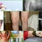 Артроз 1-й степени: лечение на начальных стадиях