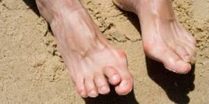 Артрит стопы: причины, симптомы и лечение, фото, диета