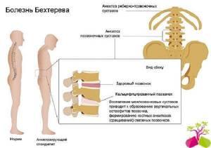 Что делать если суставы болят: определяем диагноз и способ лечения