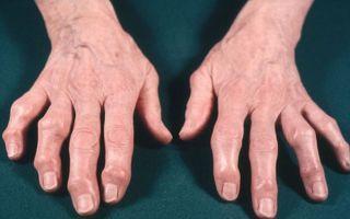 Как лечить суставы пальцев рук в домашних условиях