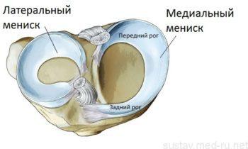 Мениск коленного сустава: симптомы и лечение повреждений