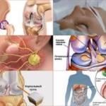 Коксартроз, операция тазобедренного сустава неизбежна