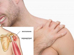 Лечение периартрита плечевого сустава в домашних условиях народными средствами