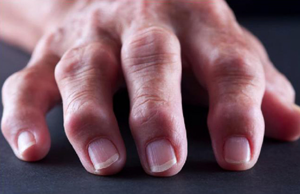 Шишки на пальцах рук: причины и лечение суставов кисти, фото