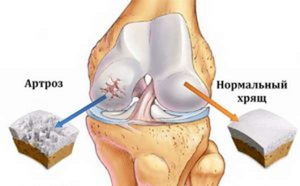 У грудничка хрустят суставы: причины хруста, лечение