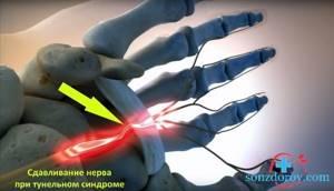 Немеют руки по ночам, причины и лечение опасных болезней