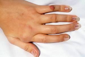 Артроз большого пальца руки: симптомы и лечение. Мази и медикаменты