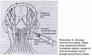 Болит шея и затылок: причины, что делать и как лечить боль