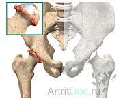 Артроз тазобедренного сустава: симптомы и лечение, что такое, признаки, как лечить