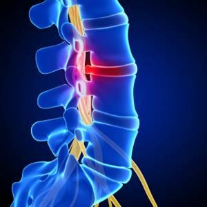 Поясничный остеохондроз 2 степени: симптомы, диагностика, тактика лечения