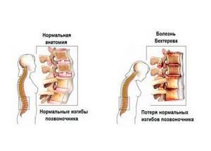 Болезнь Бехтерева у женщин: симптомы, лечение, диагностика, фото