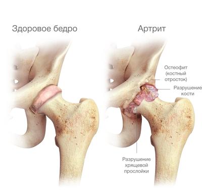 Воспаление тазобедренного сустава: симптомы и лечение